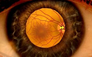 Опасен ли отек сетчатки глаза и как его лечат?