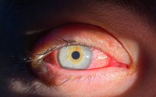 Вирусный конъюнктивит: описание, симптомы, лечение