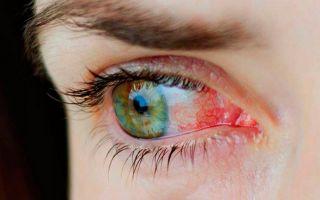 Хемоз конъюнктивы: как защитить слизистую оболочку глаз от воспаления?