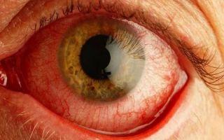 Почему глаз покраснел и болит, как с этим справиться?