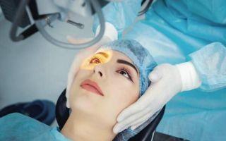 Когда глаукому лечат лазером и насколько это эффективно?