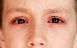 Что делать, если глаза у ребенка красные и опасно ли это?