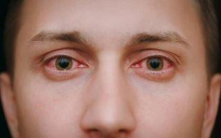 Особенности хронического конъюнктивита: симптомы и принципы эффективного лечения