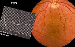 Пигментная дегенерация сетчатки глаз