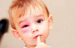 Первая помощь при укусе мошки в глаз — когда необходимо бежать к врачу