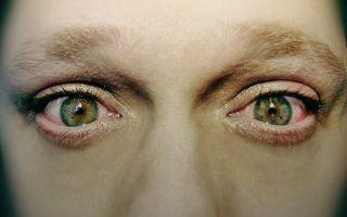 7 причин жжения в глазах и эффективные способы лечения