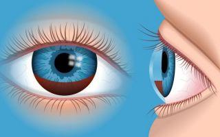 Гифема: что нужно знать о кровоизлиянии в глаз