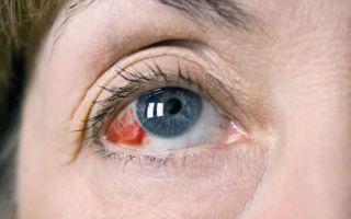 Опасны ли красные пятна в глазах: определение причины и лечение