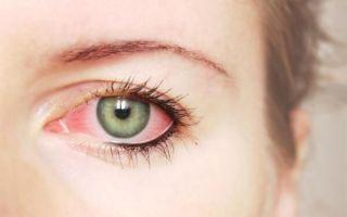 Кератит глаз (воспаление роговицы): что это такое, симптомы и лечение
