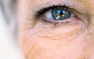 Синдром Фукса в офтальмологии