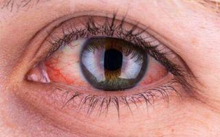 Как отличить герпетический (герпесный) конъюнктивит и полностью вылечить