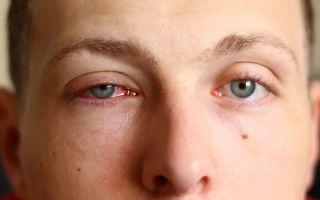Причины и лечение катарального конъюнктивита у взрослых