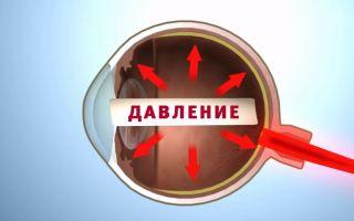 Остроугольная глаукома: как не распрощаться со зрением