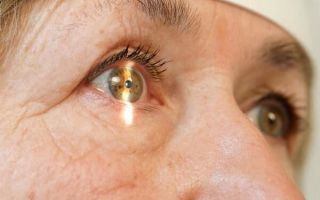 Как и зачем проводится экстракция катаракты: виды операций, реабилитация, стоимость