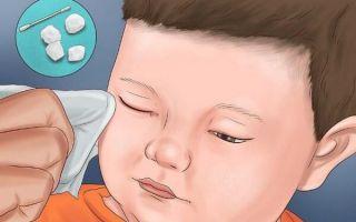 Чем и как правильно промывать глаза при конъюнктивите у ребенка?