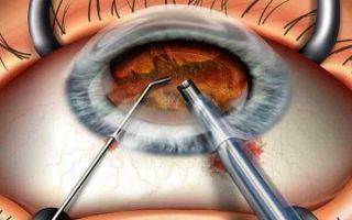Какие осложнения после операции по удалению катаракты возможны и насколько они опасны?