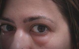 Причины отеков и припухлости под глазами, проверенные способы лечения
