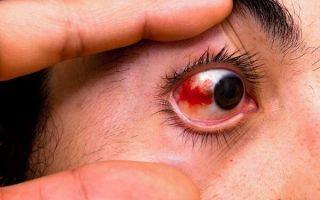 Причины и лечение кровоизлияния в глаз: что делать и как спасти зрение?