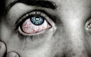 Глаз гноится и красный — о какой это говорит болезни и как ее лечить?