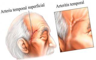 Что собой представляет височный артериит — чем он опасен для здоровья человека