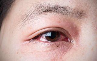 Причины аллергии на глазах и быстрое, эффективное лечение
