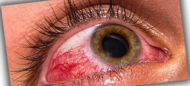 Акантамебный кератит, как защитить роговицу глаз и избежать заболевания?