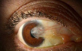 Бывает ли птеригиум глаза злокачественным: причины, симптомы и лечение образования