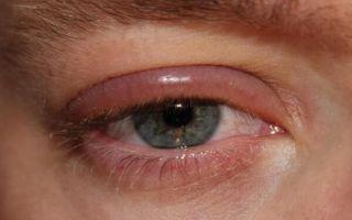Как и чем снять аллергический отек глаз и опасен ли он для жизни?
