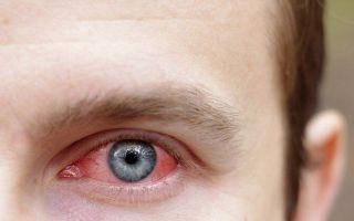 Субконъюнктивальное кровоизлияние – лечить или нет?