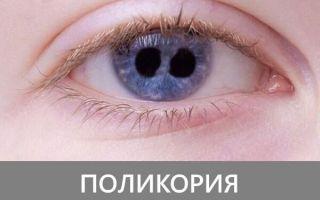 Что такое поликория (несколько зрачков): причины и современное лечение