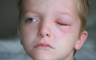 Почему опухло верхнее веко у ребенка и как оказать первую помощь?