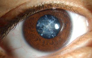 Проверка на дальтонизм: о патологии и способах диагностики