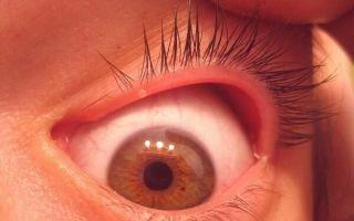Что делать если болит глаз под верхним веком – причины и характер боли