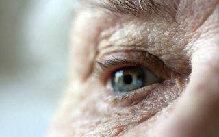 Описание вторичной глаукомы и лечение, дающее возможность восстановить зрение