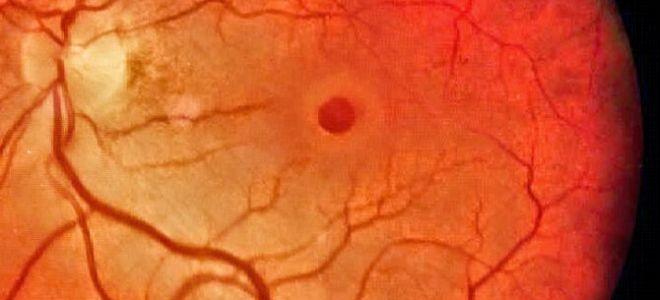 Макула сетчатки глаза: как избежать различных патологий