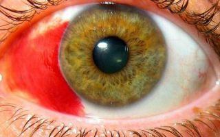 Что такое эписклерит глаз: симптомы, лечение, профилактика
