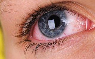 Причины сухости глаз от контактных линз — профилактика пересыхания роговицы