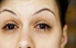 Опасно ли воспаление глаз: виды, причины и действенное лечение