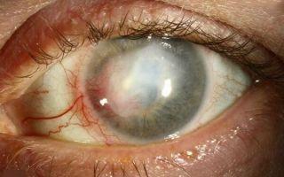 Особенности герпетического (герпесного) кератита у человека: причины, симптомы и терапия