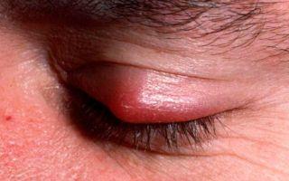 Лечение халязиона на веке — нужна ли операция?