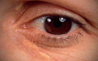 Под глазами на веках желтые пятна – о какой болезни они говорят?