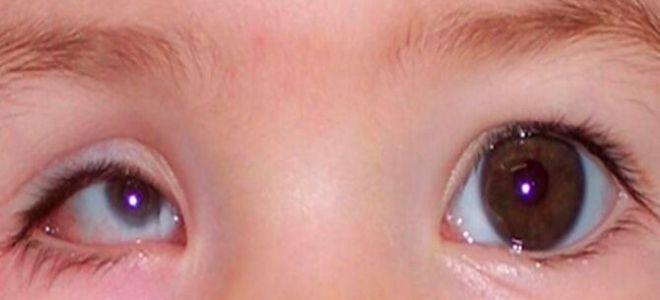 Что такое микрофтальм глаз — в чем опасность заболевания