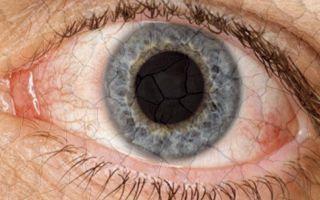 Кератоконъюнктивит – как не допустить пересыхания глаз?