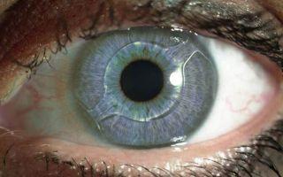 Как можно восстановить плохое зрение: доступные способы и методы лечения
