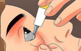 Популярные глазные мази от аллергии: применение, цены, рейтинг