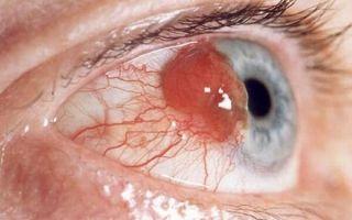 Что такое рак глаз (опухоль): первые симптомы, виды, лечение