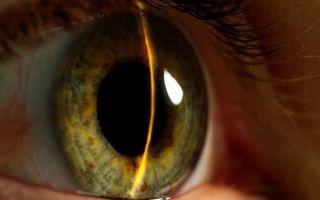 Что такое закрытоугольная глаукома и что о ней нужно знать, чтобы не потерять зрение