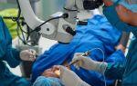 Операции при глаукоме: показания, виды лечения и восстановление