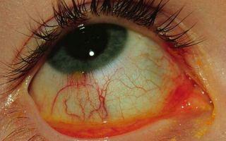 Особенности катарального конъюнктивита: опасность, причины и правильное лечение