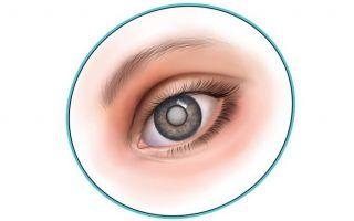 Причины помутнения хрусталика глаза — методы лечения